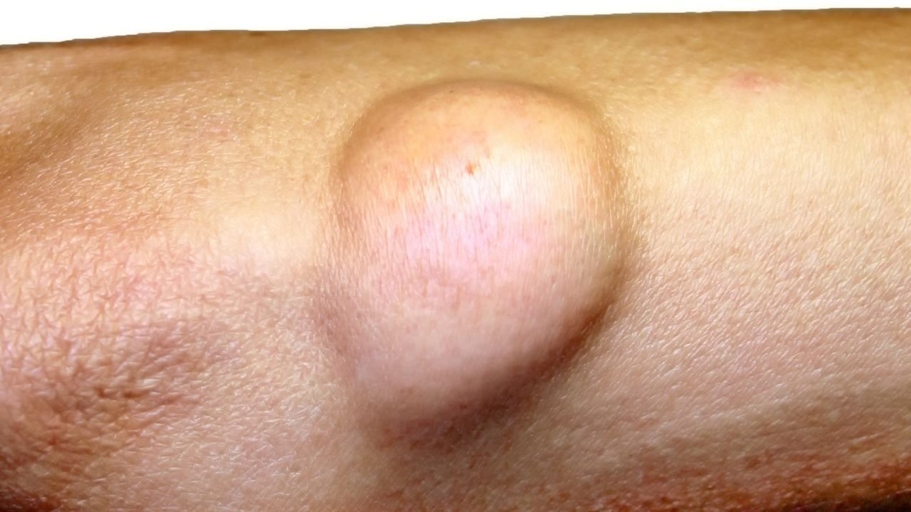 Home Remedies For Lipoma: The Best Tips